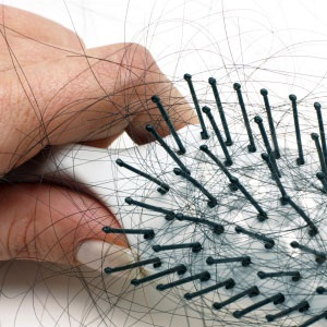 list of common causes of hair loss