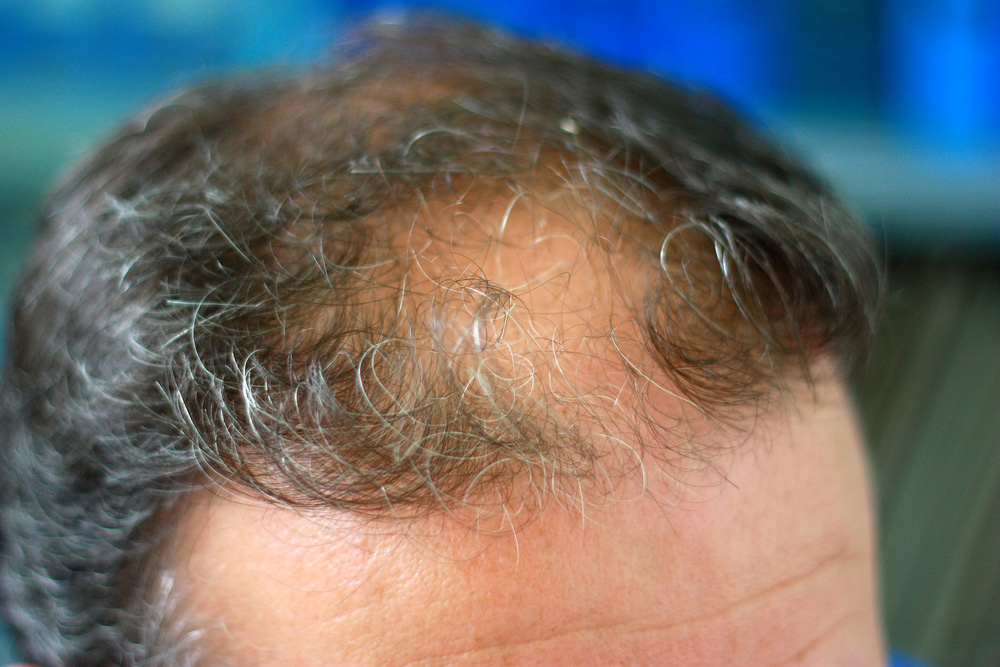 Reduce DHT For A Natural Hair Loss Remedy