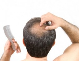 10 Facts About Hair Loss