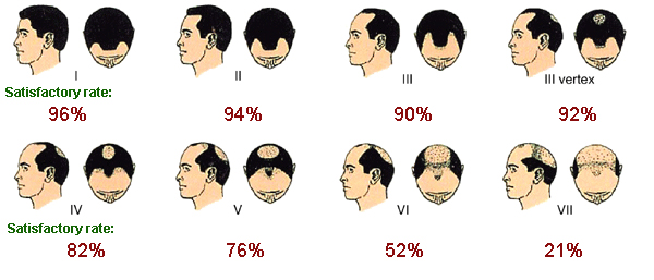 caboki men success rate scale
