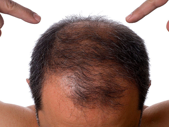 hair loss tips and tricks image