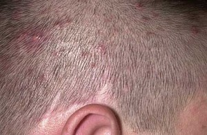 example of folliculitis on the scalp
