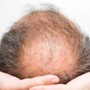 Is Hair Loss Hereditary – Is your Mother to blame?
