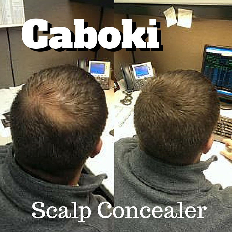 Using Scalp Concealer